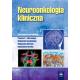 Neuroonkologia kliniczna