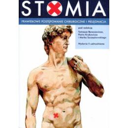 Stomia. Prawidłowe postępowanie chirurgiczne i pielęgnacja