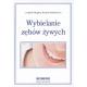 Wybielanie zębów żywych