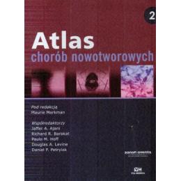 Atlas chorób nowotworowych t.2