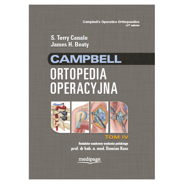ORTOPEDIA OPERACYJNA CAMPBELL t.4 Canale,Beaty