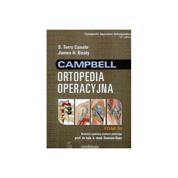 Ortopedia operacyjna Campbell t. 3