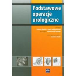 Podstawowe operacje urologiczne