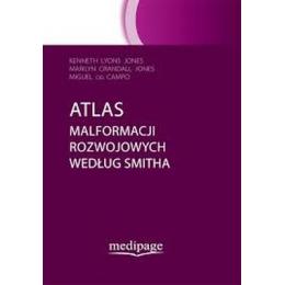 Atlas malformacji rozwojowych według Smitha