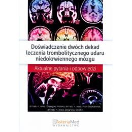 Doświadczenie dwóch dekad leczenia trombolitycznego udaru niedokrwiennego mózgu Aktualne pytania i odpowiedzi