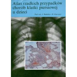 Atlas rzadkich przypadków chorób klatki piersiowej u dzieci