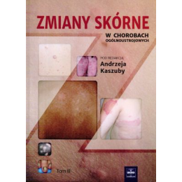 Zmiany skórne w chorobach ogólnoustrojowych t.3
