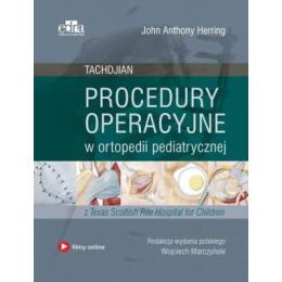 Procedury operacyjne w ortopedii pediatrycznej Tachdjian