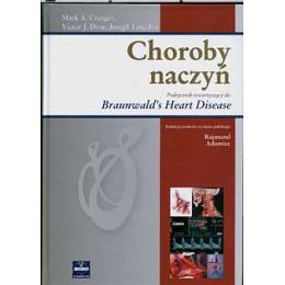 Choroby naczyń Podręcznik towarzyszący do Braunwald's Heart Disease
