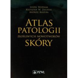 Atlas patologii złośliwych nowotworów skóry