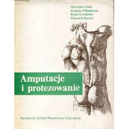 Amputacje i protezowanie
