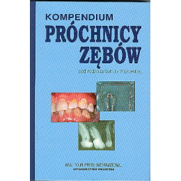 Kompendium próchnicy zębów