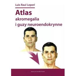 Atlas - akromegalia i guzy neuroendokrynne