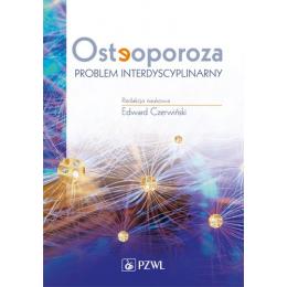 Osteoporoza Problem interdyscyplinarny