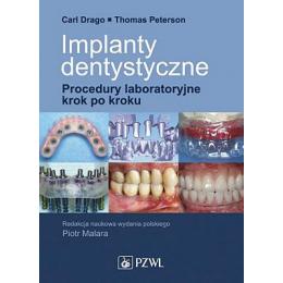Implanty dentystyczne Procedury laboratoryjne krok po kroku