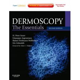 Dermatoscopy. The Essentials