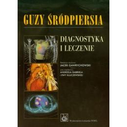 Guzy śródpiersia Diagnostyka i leczenie
