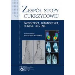 Zespół stopy cukrzycowej Patogeneza, diagnostyka, klinika, leczenie