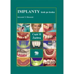 Implanty krok po kroku cz. 2 Żuchwa