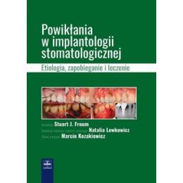 Powikłania w implantologii stomatologicznej Etiologia zapobieganie leczenie