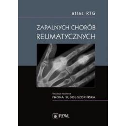 Atlas RTG zapalnych chorób reumatycznych