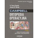 Ortopedia operacyjna Campbell t. 1