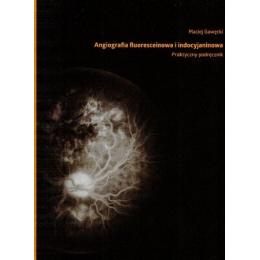 Angiografia fluoresceinowa i i indocyjaninowa  Praktyczny podręcznik