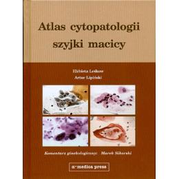 Atlas cytopatologii szyjki macicy