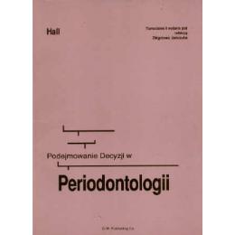 Podejmowanie decyzji w periodontologii