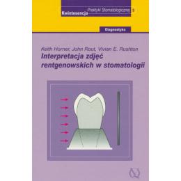 Interpretacja zdjęć rentgenowskich w stomatologii