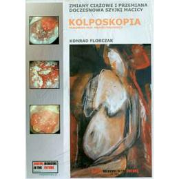 Zmiany ciążowe i przemiana doczesnowa szyjki macicy Kolposkopia