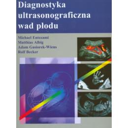Diagnostyka ultrasonograficzna wad płodu